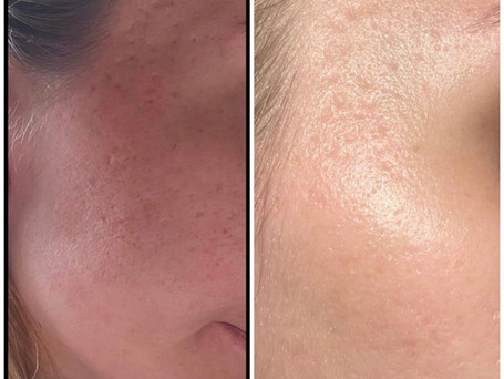 This is a progress picture of a client that was using my 'Scar treatment serum' after just one week.