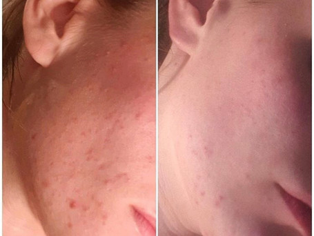 This is a progress picture of acne scarring being treated with the 'Scar treatment serum' after three months.