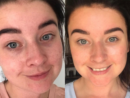 This is a progress picture of my client using the 'Clear skin toner' and the 'Scar treament serum' for only four weeks.