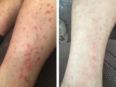 This is progress of my client who suffered from psoriasis on his legs, after using the 'Psoriasis cream' for just one week.
