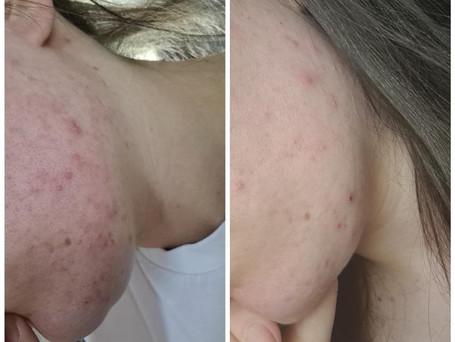 This progress picture is after only three days of using the 'blemish and acne control face wash' and the 'spot treatment gel'.