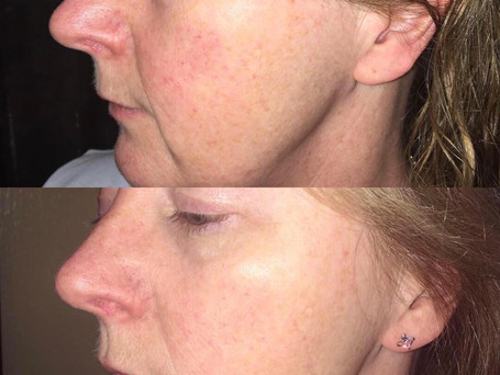 These progress pictures are of my client who was using my 'Anti-ageing serum' for three weeks.