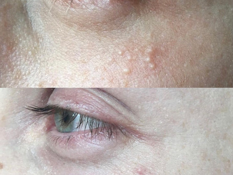 These results are after just two weeks of using my 'Milia treatment'.