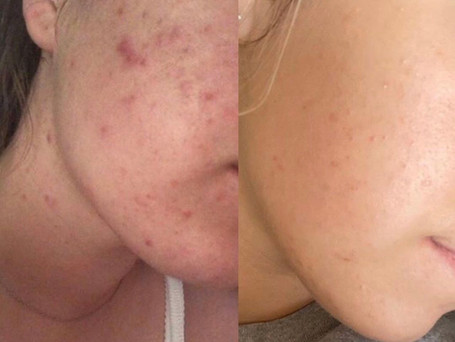 This is the progress of a client who suffered from acne, she was using the 'Clear skin toner', 'Oily skin moisturiser' for 11 months and introduced the 'Scar treatment serum' after one month.