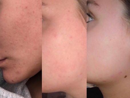 This is progress over a seven week period of my client using the 'Scar treatment serum'.