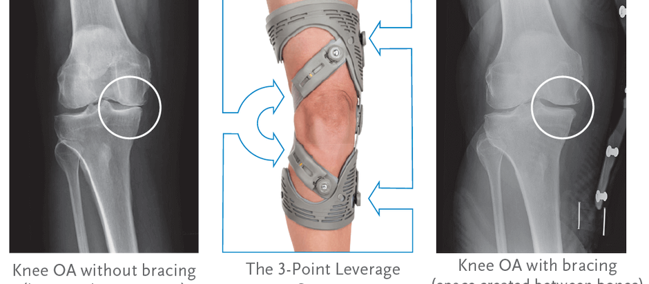 How does an unloader knee brace work?