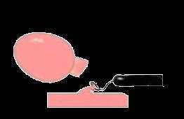 大腸ポリープ切除