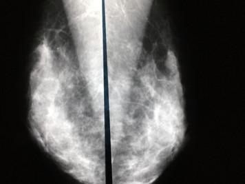糖尿病と乳癌