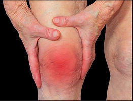 Knee Arthritis and Foot Pain