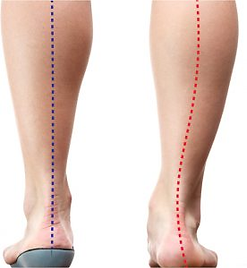 Foot posture with and without custom foot orthotics, showing pronation