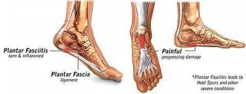 Plantar Fasciitis; Heel Spurs