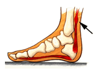 achilles-tendonitis-riverton-podiatry.pn