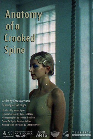 Anatomy of a Crooked Spine