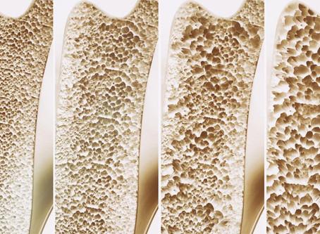 OSTEOPOROSIS AWARENESS