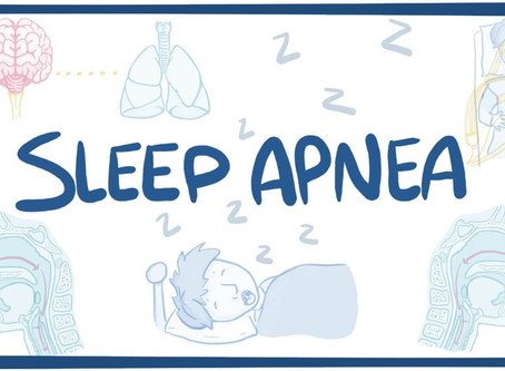 SLEEP APNEA & EXERCISE