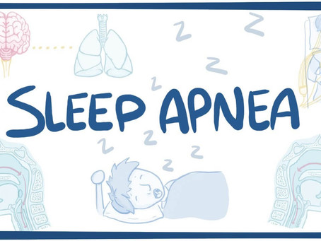 SLEEP APNEA & EXERCISE