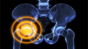Chiropractic for Hip Pain - 10/20/2020