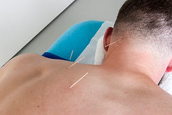 Muscular Acupuncture.jpg