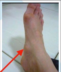 Accessory Navicular -Information