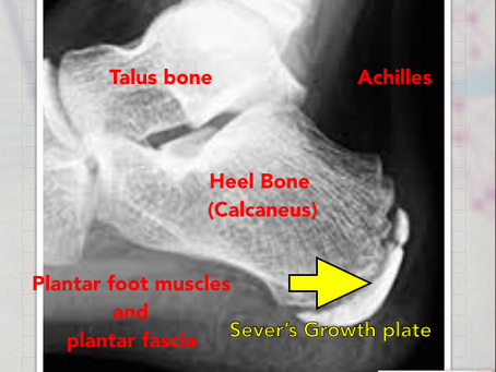 Sever's Heel Pain  (Calcaneal Apophysitis)