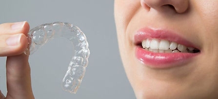affordable-and-effective-clear-aligner-i