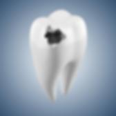Karies, hål i tanden, tandvärk, laga tand, tandfyllning