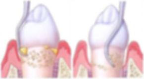 tandsten, tandköttsinflammation, blödande tandkött,