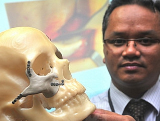 Malaysian Woman Freed From Headaches By 3D Printed Facial Implant