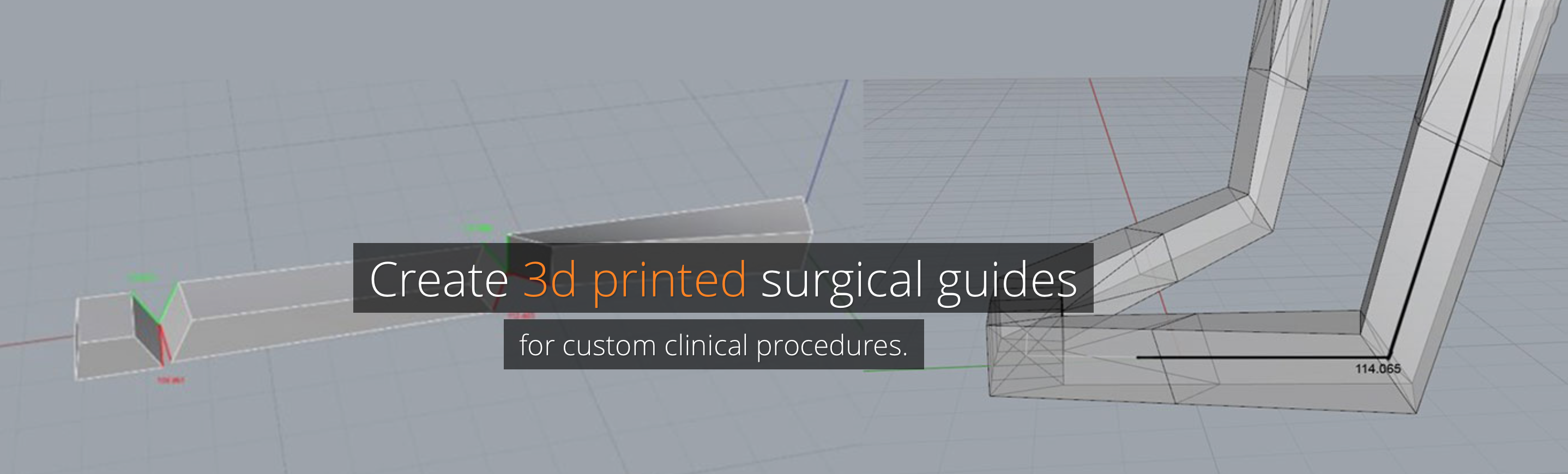 3D Printed Surgical Guide