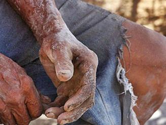 Trabalho escravo é modalidade do capitalismo brasileiro