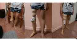 Rotationplasty Prosthesis