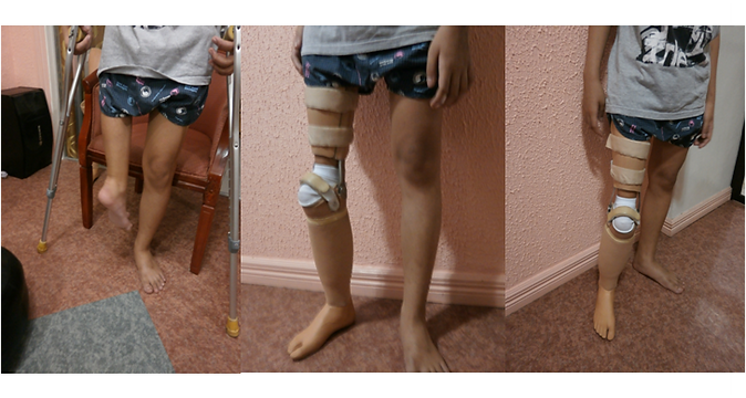 Rotationplasty Prosthesis