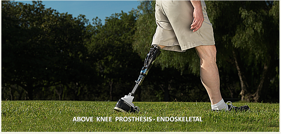 Above Knee Prosthesis - Endoskeletal