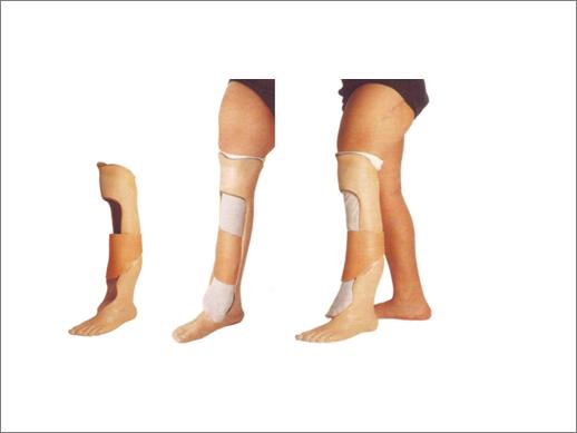 Leg Length Discrepancies