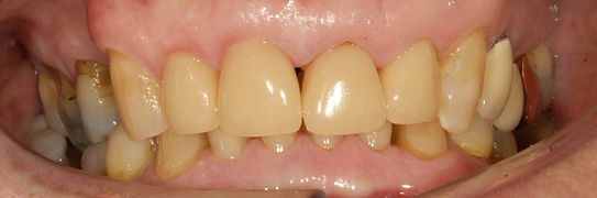 Cosmetic dental crowns in Newcastle