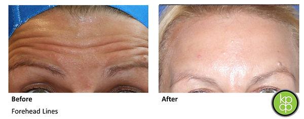 Botox newcastle wrinke forehead