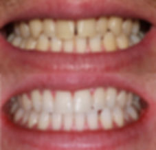 Tooth straightening, teeth whitening Newcatle