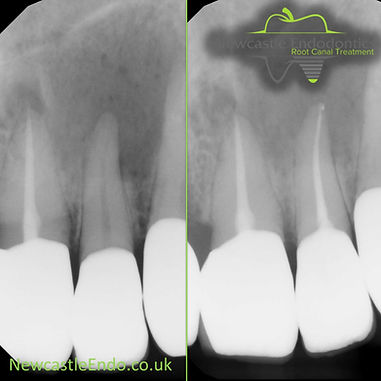 root canal cosmetic dentistry