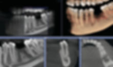 CBCT-Dental-Imaging-Market.jpg