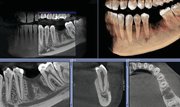 three dimensional x-ray cbct