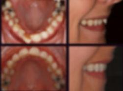 Straight teeth newcastle