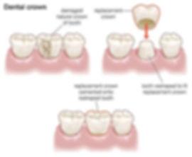 Dental crown in Newcastle