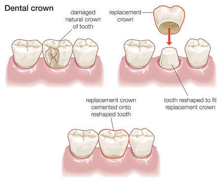 Dental crown in Newcastle