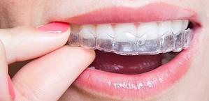 Invisible braces newcastle
