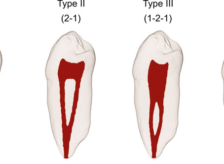 Root canal treatment with merging canals.