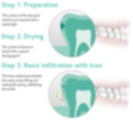 Drill free dentistry Newcastle