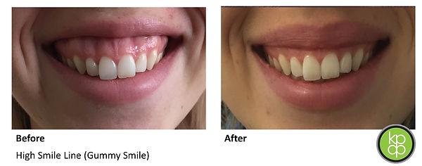 Botox newcastle gummy smile