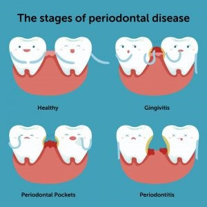 Spring Clean Your Teeth - How Oral Health is linked to your general well being