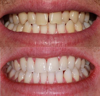 Straightening wonky teeth newcastle