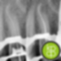 Root Canal Treatment in Newcastle